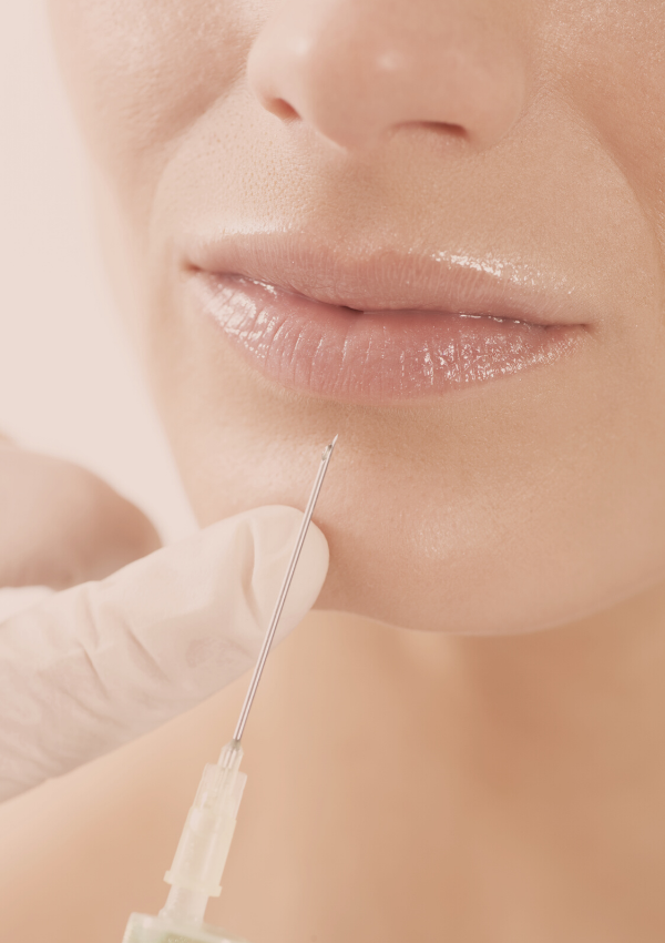 Filler 101: Your Guide To Facial Fillers